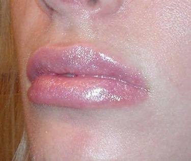 gonfiore alle labbra