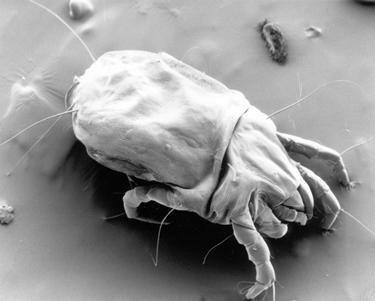 Esemplare di acaro della polvere