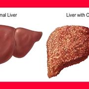 Fegato affetto da cirrosi epatica