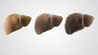Stadi della cirrosi epatica
