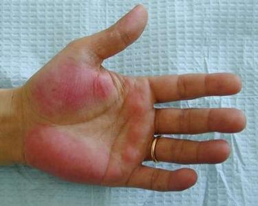 Sintomi cirrosi epatica