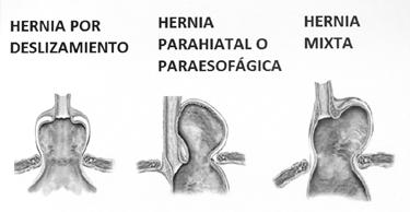Le tre tipologie di ernia