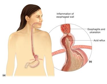 Alcuni sintomi della patologia