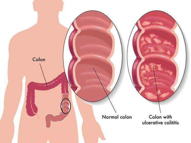 Rappresentazione del colon