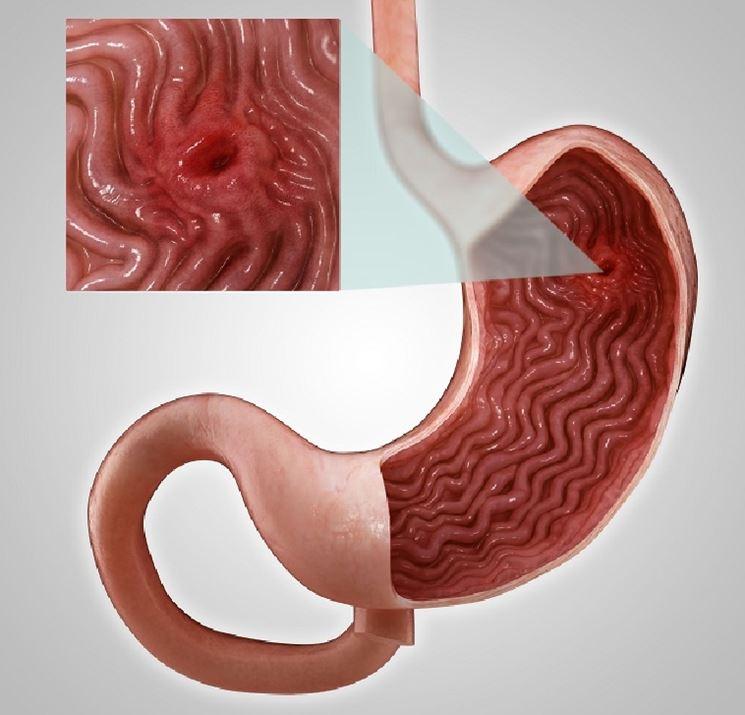 Effetti ulcera duodenale