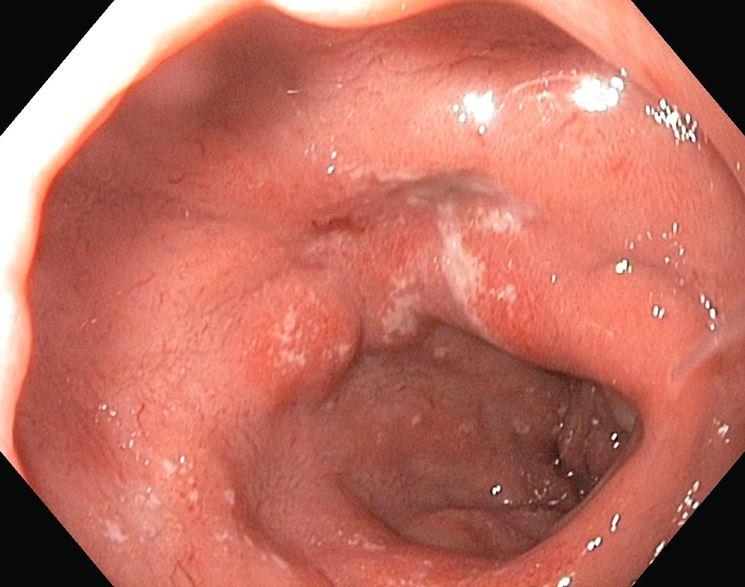 Ulcera duodenale cronica