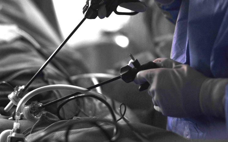Intervento artroscopia