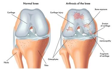 Ginocchio normale e con artrosi