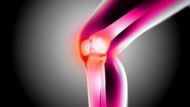 Anca normale e con artrite