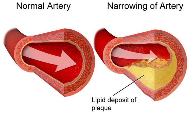 Arteria normale e arteria danneggiata da colesterolo