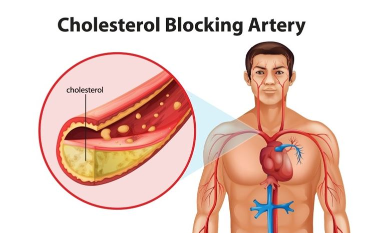 Danni colesterolo