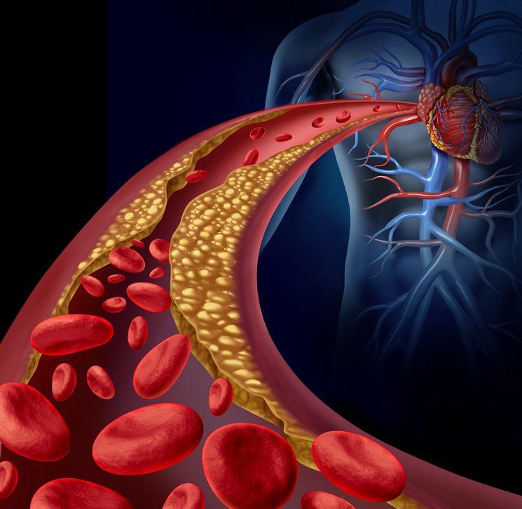 Ostruzione delle arterie per aterosclerosi