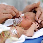Bambini prematuri
