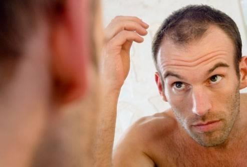 perdita dei capelli - Capelli Uomo cb09a4de5264
