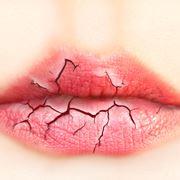 Bocca e labbra secche