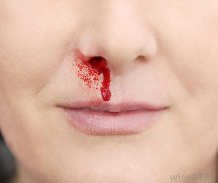 Naso sanguinante