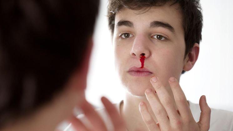 Sangue naso