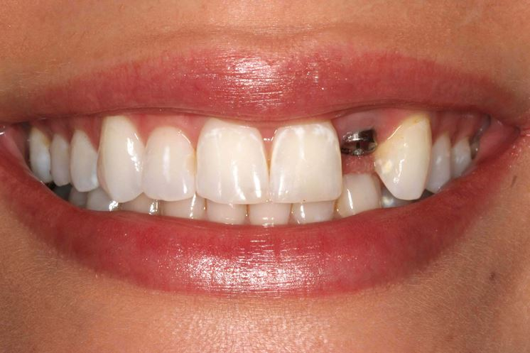 Impianto dentinale