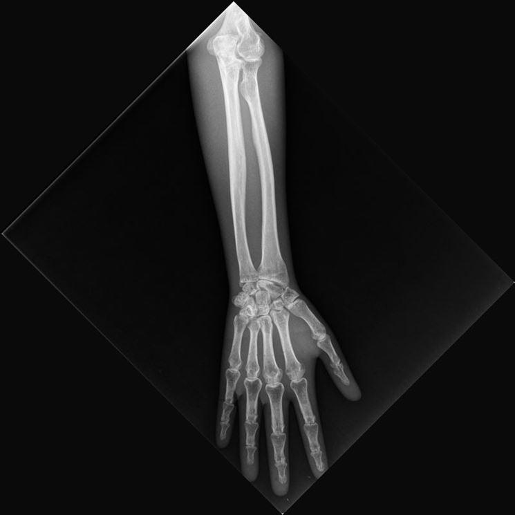 Raggi braccio
