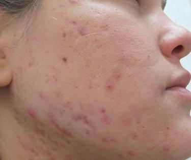 I mezzi per cura di pelle hanno teso a unacne