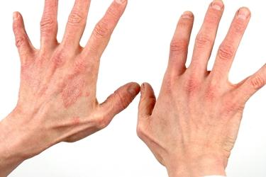dermatite viso