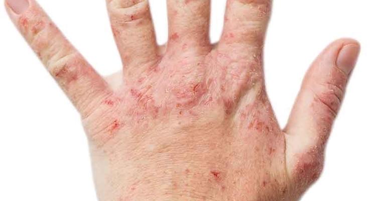 mani con eczema