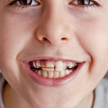 apparecchio ai denti bambini