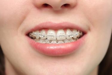 Ragazza con apparecchio ai denti