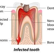 Sezione di un dente malato