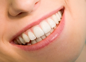 Denti gialli