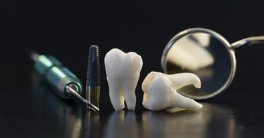 Estrazione del dente del giudizio