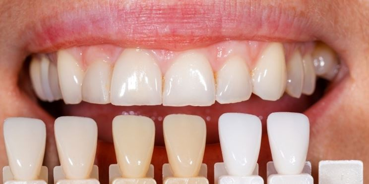Faccette dentali vantaggi