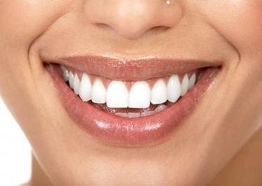 bellezza dei denti