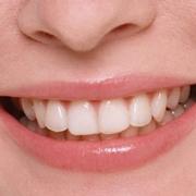salute della bocca