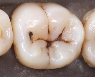 denti da curare