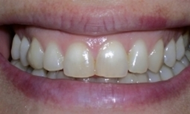 macchie denti