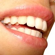 sorriso di denti bianchi