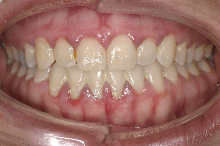 Tartaro bocca