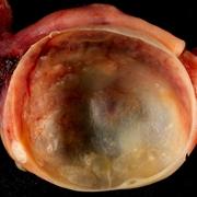 Cisti ovarica benigna