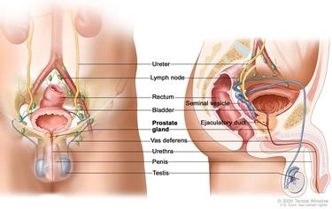 Tumore della prostata<p />