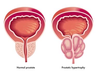 prostata<p />