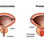 Prostatite in atto