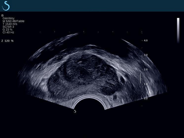 Immagine ecografica prostata