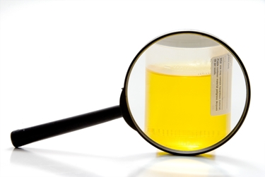 esame urine per ematuria