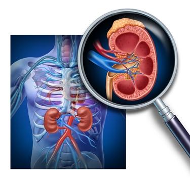 reni e sangue nelle urine