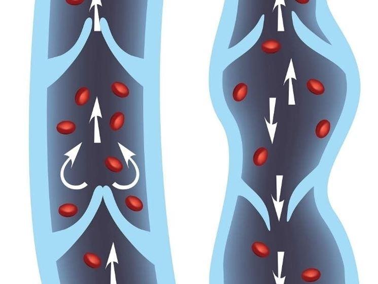 Inversione flusso sanguigno