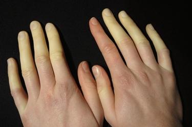 Effetti della patologia sulle dita