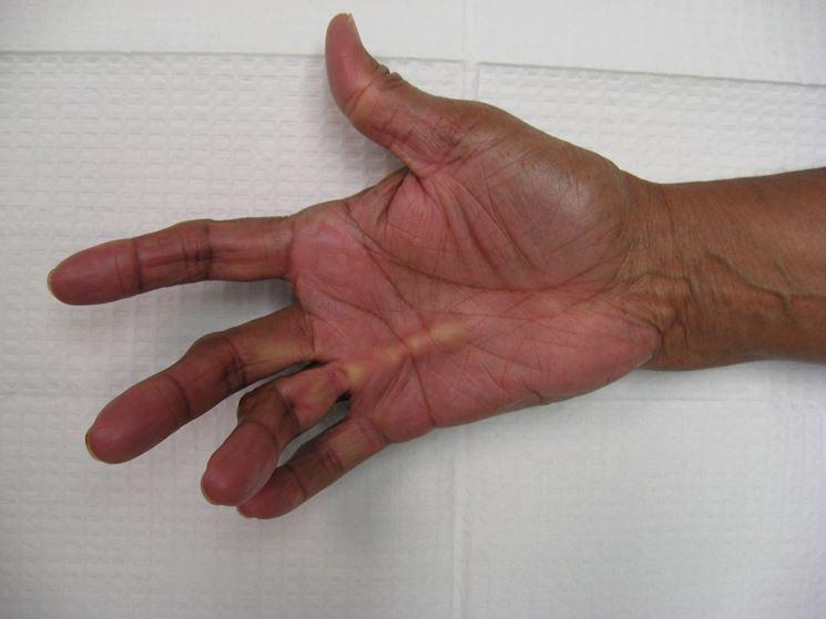 Morbo di dupuytren prima e dopo l'intervento
