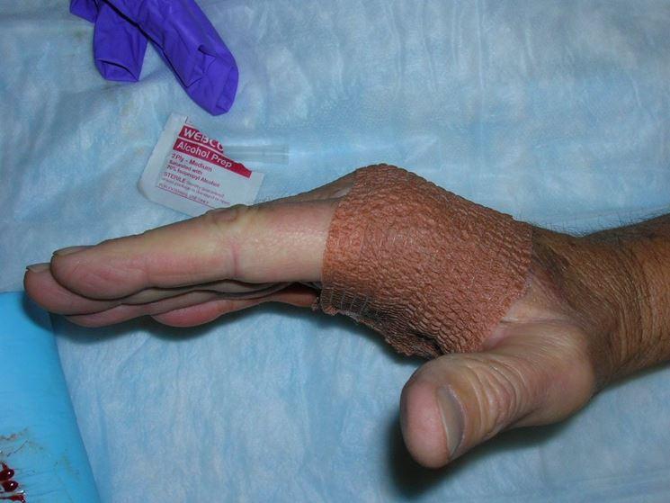 Trattamento preventivo della mano