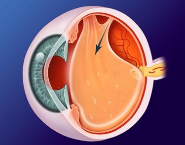 segni di alterazione nell'occhio